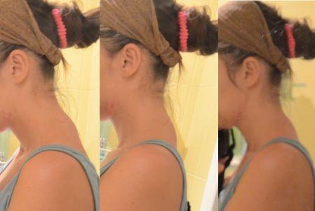 горб на шее как избавиться фото