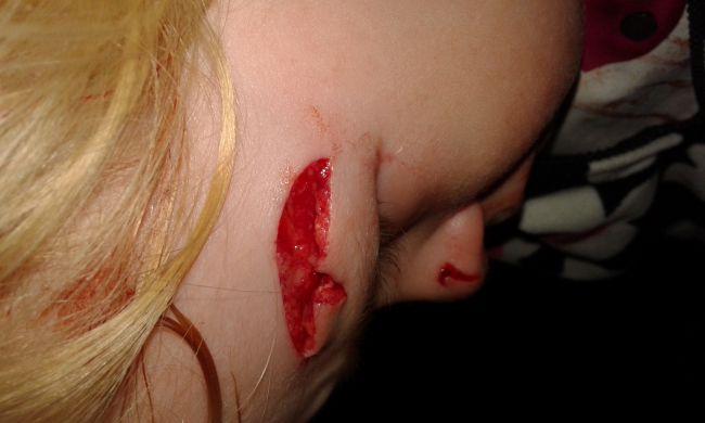 прививка от столбняка после укуса собаки