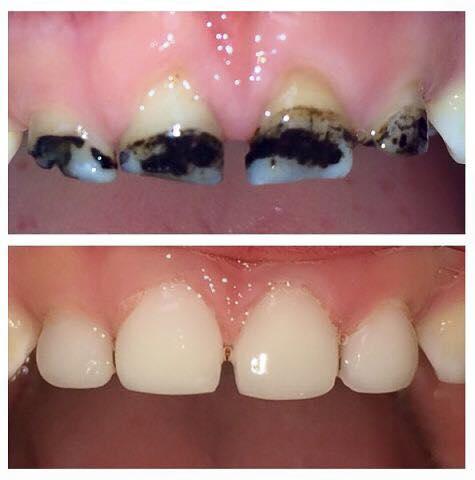 Серебрение или фторирование молочных зубов