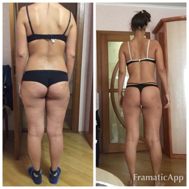 худеет ли нога при похудении
