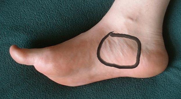 Сильная боль в ступне с внутренней стороны